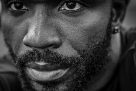 africain-barbe-soins-folliculite-poils-incarnés